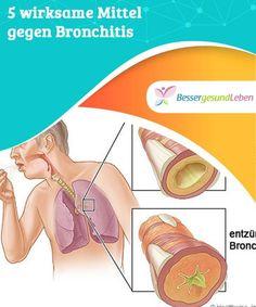 5 #wirksame Mittel gegen Bronchitis #Schlecht auskurierter #Husten kann zu #Bronchitis führen, wenn sich die Schleimhaut der Bronchien entzündet. Welche Mittel gegen Bronchitis helfen wirklich?