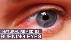 natural remedy for aching throat, Eye, Skin and also Sinus infections.Understanding signs and All-natural means to heal and reduce pain. Ayurvedic Home Remedies, Natural Remedies, Heath And Fitness, Tired Eyes, Home Treatment, Sinus Infection, Eye Strain, Good To Know, Burns