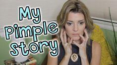 MY PIMPLE STORY // Grace Helbig