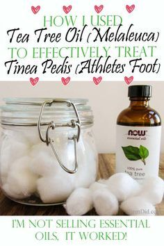 I used to treat Athlete's foot with over the counter creams and sprays. Find out how easy it is to treat with essential oil. http://brendid.com/use-tea-tree-oil-to-treat-tinea-pedis-athletes-foot/