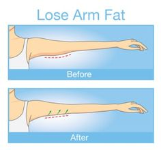 The Exercise That Will Eliminate Your Arm Fat in 1 Week and It Will Only Take a Minute - Health Guide 365 Fat Before And After, Gym Workouts, At Home Workouts, Arm Flab, Lose Arm Fat, Health Programs, At Home Workout Plan, Want To Lose Weight, Gain Muscle