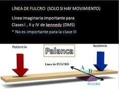 """Importancia de la línea de fulcro para la retención indirecta ------ La palabra fulcro,proviene del latin """"fulcrum""""que significa: Punto de apoyo de una palanca. La palanca es una máquina simple (Física)que tiene como función transmitir una fuerza y un desplazamiento."""