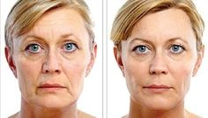 A Face Gymnastics  Massaging System That Yields Organic Facelifts