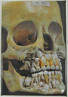 Hunterian Museum  baby teeth skull cutout