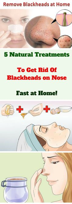 Blackheads, also known as open comedones, are tiny, but visible dark/black spots on the skin. Whitehead is a term used for closed comedo. So, what exactly are blackheads? – They are blocked pores where skin debris, keratin and sebum accumulate. This is usually the first phase of formation of acne because blackheads usually grow into pimples.