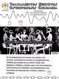 Tratamientos contra la fragilidad ósea, riesgos de fracturas alto, osteoporosis moderada y severa, osteopenia. Consultas con médicos especialistas en ortopedia y traumatología. Visítenos en la Clínica de Artrosis y Osteoporosis www.clinicaartrosis.com PBX: +571-6836020, Teléfono Movil: +57-300-2597226 en Bogotá - Colombia.