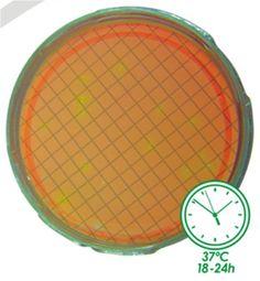 Meios de Cultura Cromogênicos CromoCen® m-AGN para filtração por membrana– BioCen do Brasil BioClassi