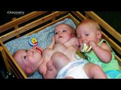 Rare Conjoined Twins - Surgeon Dr James Stein prepares for complex surgery to separate twins Mackenzie and Macy Garrison who were born with a triplet sister.