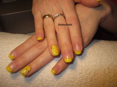 yellow French manicure with daisy flower by DoinaNails - Nail Art Gallery nailartgallery.nailsmag.com by Nails Magazine www.nailsmag.com #nailart