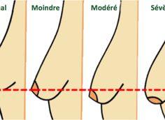 afaissement seins (1)