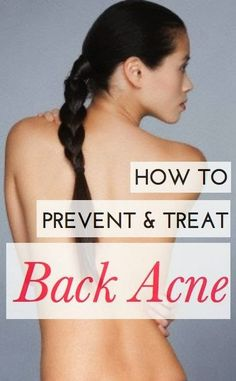 How to prevent & Treat Back Acne?