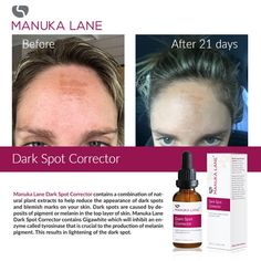 Manuka Lane Dark Spot Corrector contains a combination of natural plant extracts to help reduce the appearance of dark spots and blemish marks on your skin. Dark Spot Corrector, Dark Mark, Manuka Honey, Dark Spots, Your Skin, Plant, Natural, Day, Dark Stains