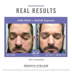 """From the doctors who created Proactive, Unblemish works miracles on acne and can be used with Soothe products for sensitive skin as well.  The sooner you start, the sooner you'll have your own amazing """"after"""" results! angelina.r.stephens@gmail.com Get started and find your solution at https://www.surveymonkey.com/r/RodanFields"""