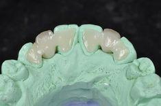 e.max Maryland Bridge ‹ ‹ Professional Dental StudioProfessional Dental Studio