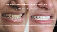 .  Dr Trivikram (Dr Vikram),an expert cosmetic dentist in Bangalore offers smile makeovers. This treatment is not a surgery and your teeth can be straightened without braces/orthodontic treatment and can be finished in just 5-7 days. Read more at http://www.allsmilesdc.org/cosmetic-dentistry-faqs/ ALLSMILES - located only at - N0.64, SHANKAR MUTT MAIN ROAD BASAVANAGUDI.(no other branches). BANGALORE-560004.KARNATAKA. INDIA.   PH +91-0- 98450 85230.080-26673439