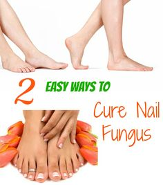 2 Very Easy And Effective Ways To Fight Nail Fungus At http://www.stanshealth.com/2007/09/easiest-way-to-fight-parasitic-fungus.html