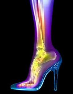 Ladies you look awesome in those heels - thank you BUT they are not very good for your feet