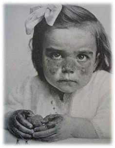 Little girl with Pellagra, 1904.