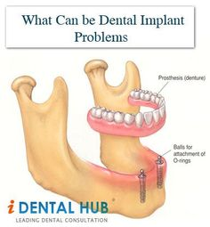 The dental implants problem occurs when the implant that is fixed is unable to bond with the bone around it. This can result in several dental implant problems.