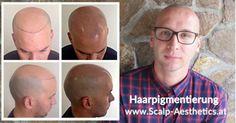 Kopfhautpigmentierung ist die moderne methode für haarausfall und dünnes Haar. https://kopfhautpigmentierung.wordpress.com/