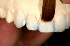 Veneers can be made by utilizing a technique similar to the lost wax technique that has been used in metal working and jewelry making for centuries.