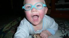 Lucas - Accommodative Esotropia & Hyperopia with astigmatism
