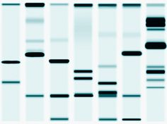 Stock Photo : DNA Sequencing Gel, close-up (full frame)