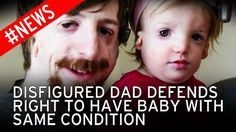 New dad with severe facial disfigurement defends decision to have ...