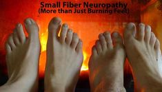 Small Fiber neuropathy and the link with Fibromyalgia - more than just burning feet and tingling hands Chronic Fatigue Syndrome, Chronic Illness, Chronic Pain, Urinary Incontinence, Peripheral Neuropathy, Tips And Tricks, Tingling Hands, Signs Of Fibromyalgia, Fibromyalgia Pain
