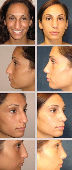 Dr. Kincaid is a talented rhinoplasty surgeon, learn more at www.skincaidmd.com