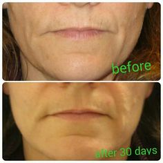 Lip and eye cream! It Works!  http://healthymetoday.myitworks.com