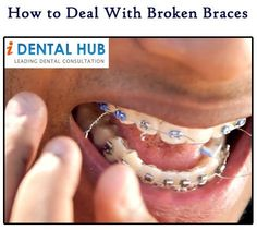 Tips for taking care of your braces and dealing with the repercussions of the damages.