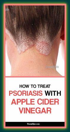 Scrap Psoriasis Cure Luxury