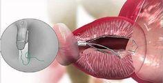 A prostatite é uma das doenças mais comuns da próstata, junto com a hiperplasia benigna e o câncer de próstata.Mas o que é a próstata?Para quem não sabe, a próstata é uma glândula pequena, do tamanho de uma uva, e faz parte do sistema reprodutor masculino.