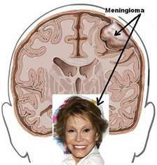 Mary Tyler Moore, the first (that I know of) face of the Meningioma Brain Tumor....which I have..