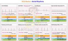 Did atrial tachycardia rhythm strip like