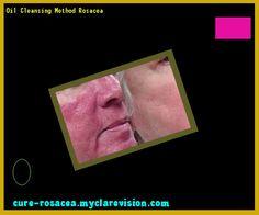 Oil Cleansing Method Rosacea 193714 - Cure Rosacea