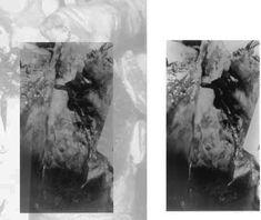 Kennedy Autopsy Photographs X-rays | Are Jfk Autopsy Photos Real