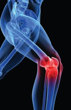 Arthritis knee pain the orthopaedic clinic pinterest knee pain arthritis knee pain the orthopaedic clinic pinterest knee pain arthritis and knee pain exercises ccuart Images
