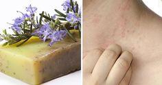 sapone fai da te dermatite