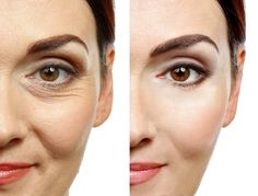 Anti-wrinkle Injections or Botox can help to reduce the appearance of lines and wrinkles on the face. Frown lines, forehead lines or general wrinkles can be treated with a course of anti-wrinkle injections. Under Eye Wrinkle Treatment, Eye Treatment, Loción Facial, Rosehip Oil Benefits, Creme Anti Rides, Under Eye Wrinkles, Acne Scar Removal, Hair Removal, Beauty Hacks