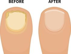 Fingernail Fungus Pictures – Best Toe Fungus Treatment Vinegar – The Truth Is You Simply Do Not Know About Toenail Fungus Fingernail Fungus, Toe Fungus, Toenail Fungus Remedies, Fungus Toenails, Psoriasis Remedies, Foot Remedies, Top 10 Home Remedies, Natural Remedies, Health Fitness