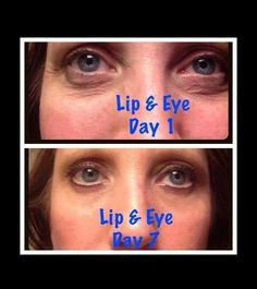 Lip & Eye Cream is one of my absolute favorite It Works products and this is why!! You see immediate results, but check out her progressive results after using it regularly for just 7 days!! Why have you not tried it yet?!!