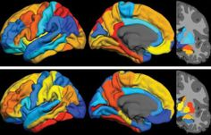 Alzheimer's Progression Predicted by Tau Protein, Not Amyloid