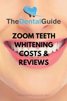 Teeth lightening products uses products consisting of peroxide to give the teeth a white and tidy appearance. You can either visit the cosmetic dental expert or utilize a home-based whitening system. Teeth Whitening Cost, Zoom Whitening, Teeth Whitening Remedies, Dental Veneers, Dental Braces, Dental Care, Veneers Teeth Cost, Teeth Braces, Implants Dentaires