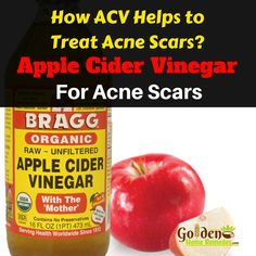 Apple Cider Vinegar For Acne Scars: How To Use Apple Cider Vinegar For Acne Scars, Get Rid Of Acne Scars Fast! skin tips Cystic Acne Treatment, Back Acne Treatment, Acne Treatments, Vinegar For Acne, Acne Reasons, Homemade Acne Treatment, Natural Acne Remedies, Herbal Remedies, Acne Scar Removal