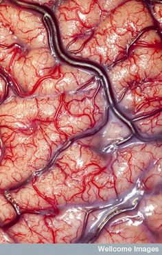 A living human brain in all it's glory, photographed by Robert Ludlow of UCL's Institute of Neurology, London.