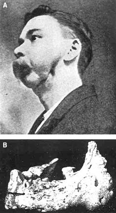 Multiple low wageworkers in the 19th century suffered from 'Phossy Jaw'. A disease which caused the jawbone to rot.