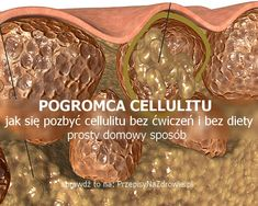 przepisynazdrowie.pl-jaksie-pozbyc-cellulitu-prosty-domowy-sposob-pogromca-cellulitu Herbal Remedies, Cellulite, Diy Beauty, Herbalism, Garlic, Health Fitness, Weight Loss, Food, Juice