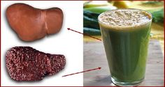 Natural Beverage For Cleansing Fatty Liver -    The liver is one of the most important organs in the body, and fast and processed foods can only cause heavy consequences. Liver is processing food, eliminating toxins and other harmful substances that come in our organism. If the liver is not working well, it has a harmful effect on all...